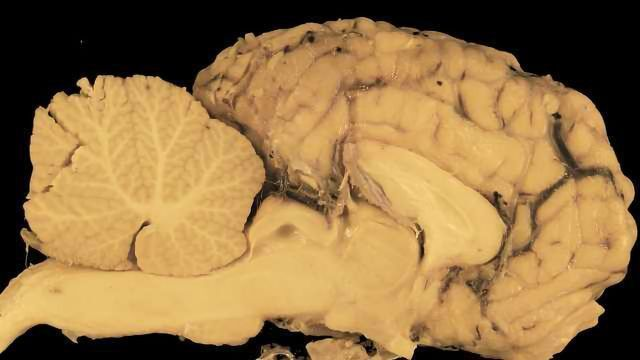 Credit One Application >> Autism Spectrum Disorder Linked to Shape of Brain's Cerebellum | Technology Networks