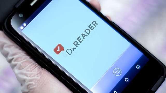 NOW Diagnostics Acquires CELLMIC Reader Technology