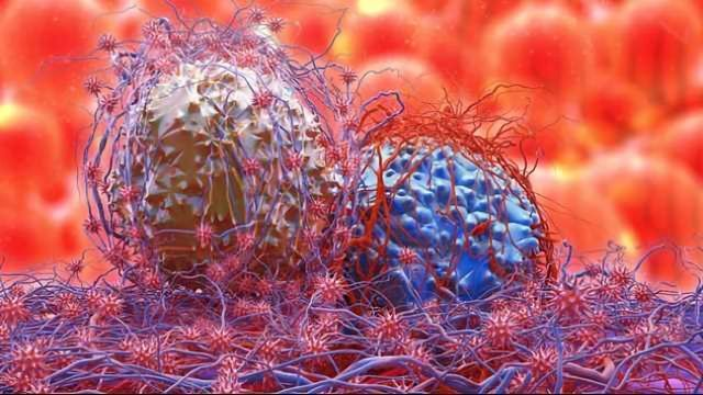 Testosterone Effective at Combating Cachexia in Cancer Patients