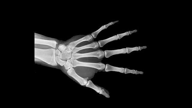 Regenerative Medicine Meets Clever Engineering to Accommodate Bone Grafts