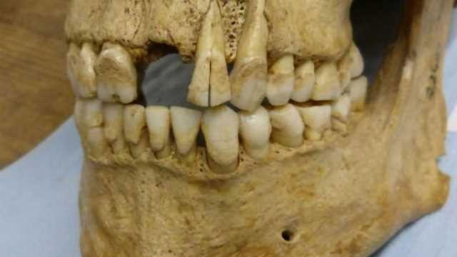 Bad Teeth Put to Good Use