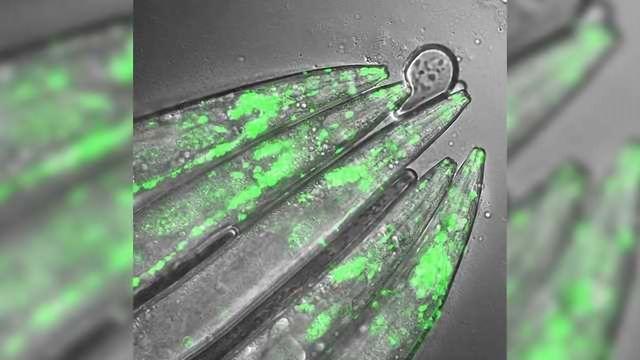 Researchers Reduce Neurodegeneration in Huntington's Stem Cell Model