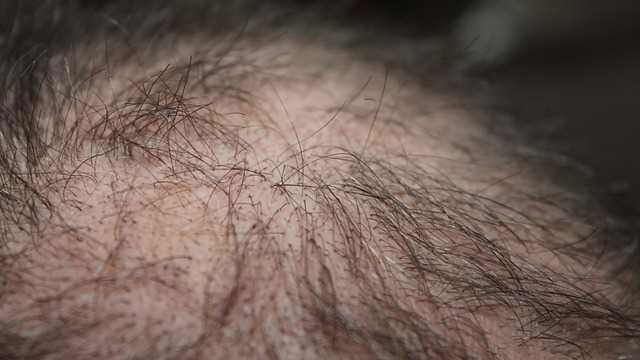 Hair Loss and Skin Damage Reversal from Experimental Drug