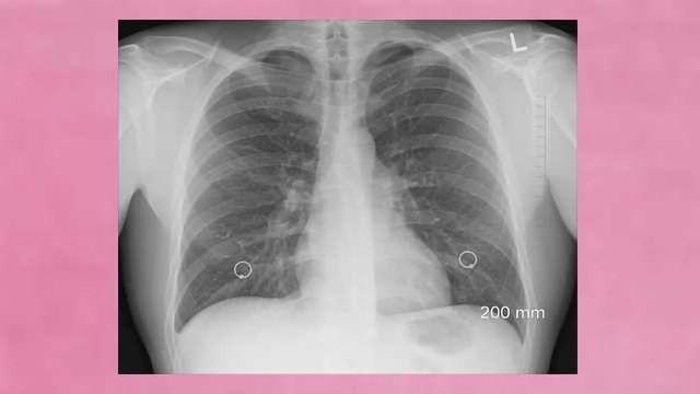 Bioengineered Lungs Successfully Transplanted into Pigs
