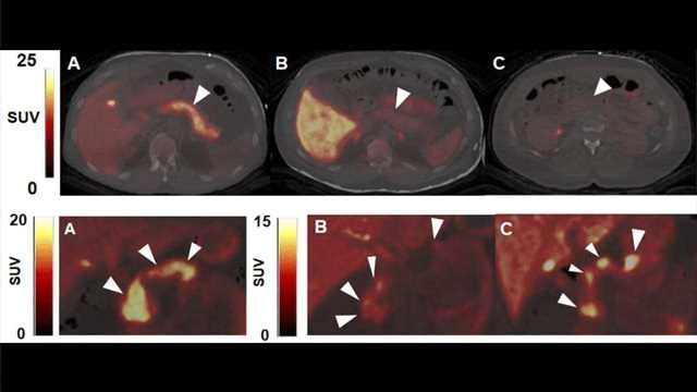 A PET Imaging Method to Track and Guide Diabetes Therapies