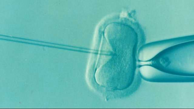 Embryo Screening Does Not Improve Live Birth Rate in IVF