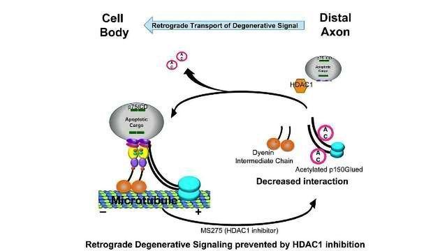 Enzyme Motor Drives Neuron Death