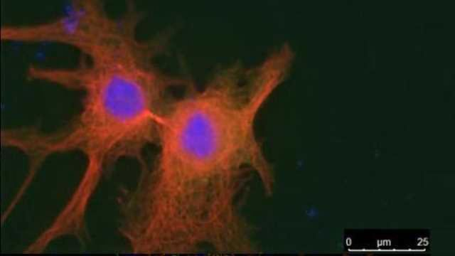 Discovery of Tumor Suppressor Previously Thought to Be an Oncogene