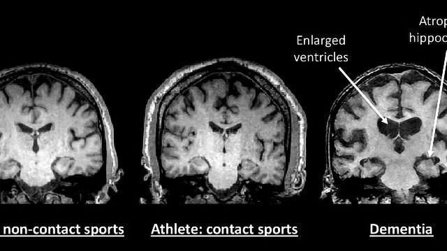 Comprehensive Study of 21 Retired NFL and NHL Players Doesn't Find Evidence of Early Onset Dementia
