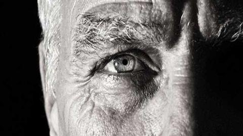 Eye Conditions Provide New Lens for Screening for Alzheimer's