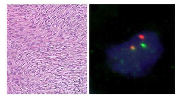 PCR Assay Helps ID Sarcoma Mutations
