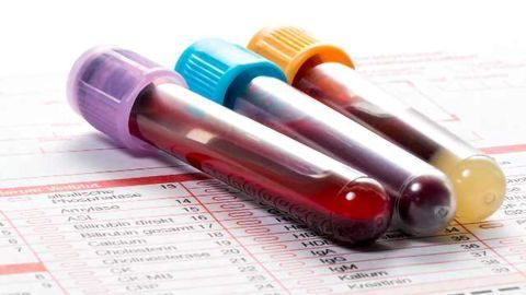 Cancer Biomarkers: the Liquid Biopsy Revolution