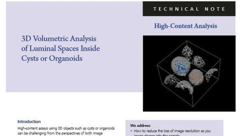 3D High-Content Analysis of Luminal Spaces Inside Cysts or Organoids