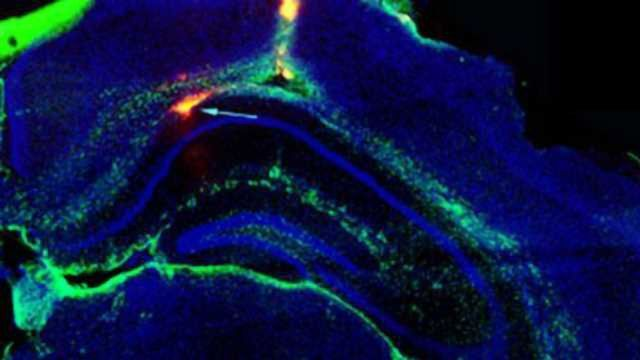 Electronic Device Planted in Brain Could Stop Seizures