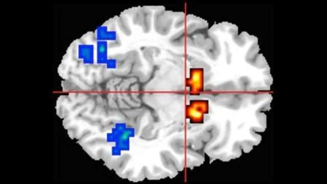 Cannabis Extract Cannabidiol Helps Reset Brain Function in Psychosis
