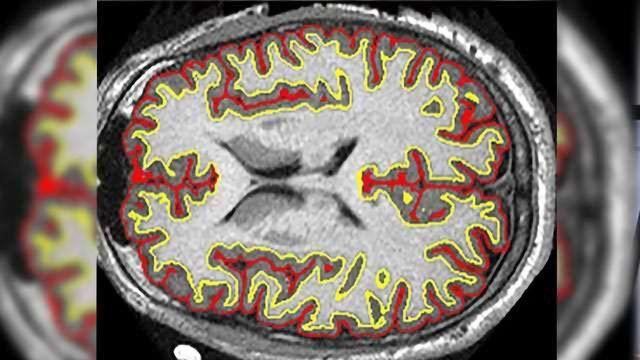 Multiple Sclerosis Drug Slows Brain Shrinkage