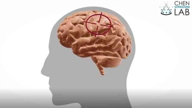 Focused Drug Delivery for Brain Cancers