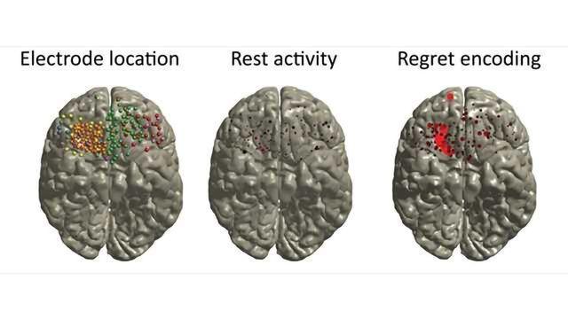 Neuroscience Reveals the Gambler's Curse! -Regret