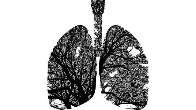 AI Helps the Doc Assess Lung Function