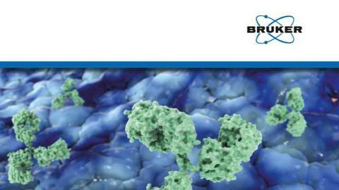 Is your Therapeutic Protein Characterization Pipeline Ready for the Future?