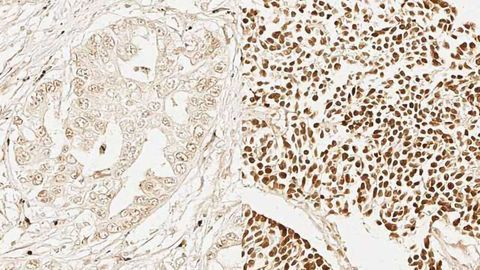 Genetic Similarities Found Across Multiple Cancer Types
