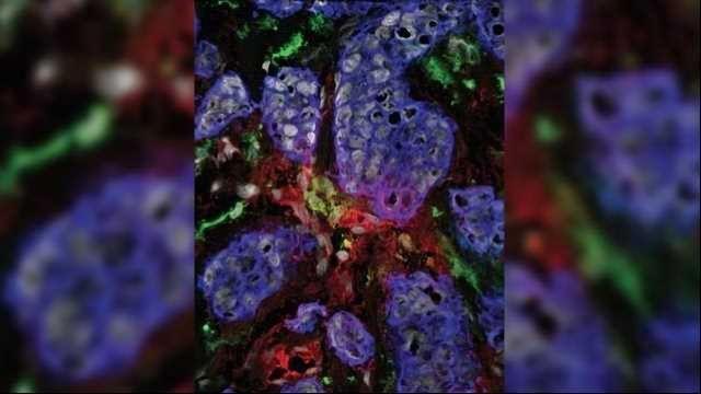 Cytokine Signature Helps Target Advanced Breast Cancer