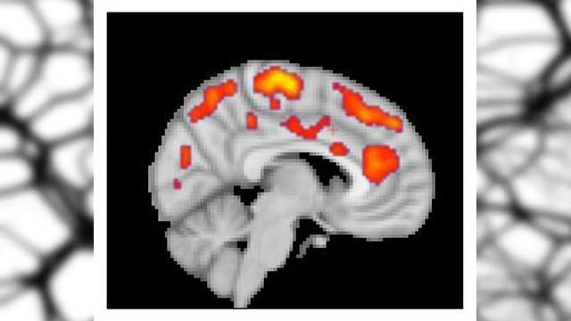 Glial Activation Found in the Brains of Fibromyalgia Patients