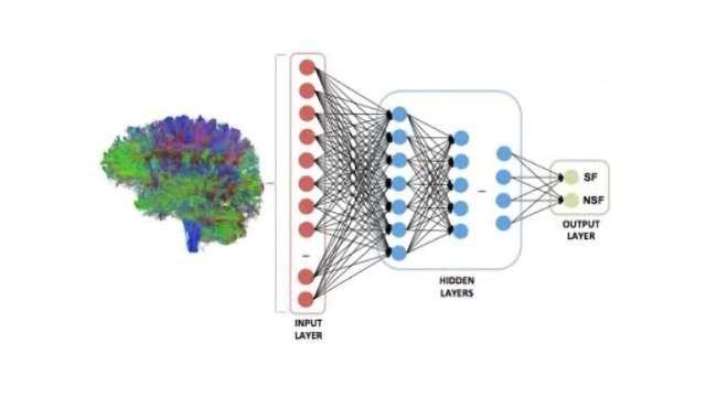 Teaching AI to Predict Epilepsy | Technology Networks