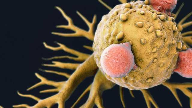 Tumors Shrunk by Synthetic Checkpoint Inhibitor Antibodies