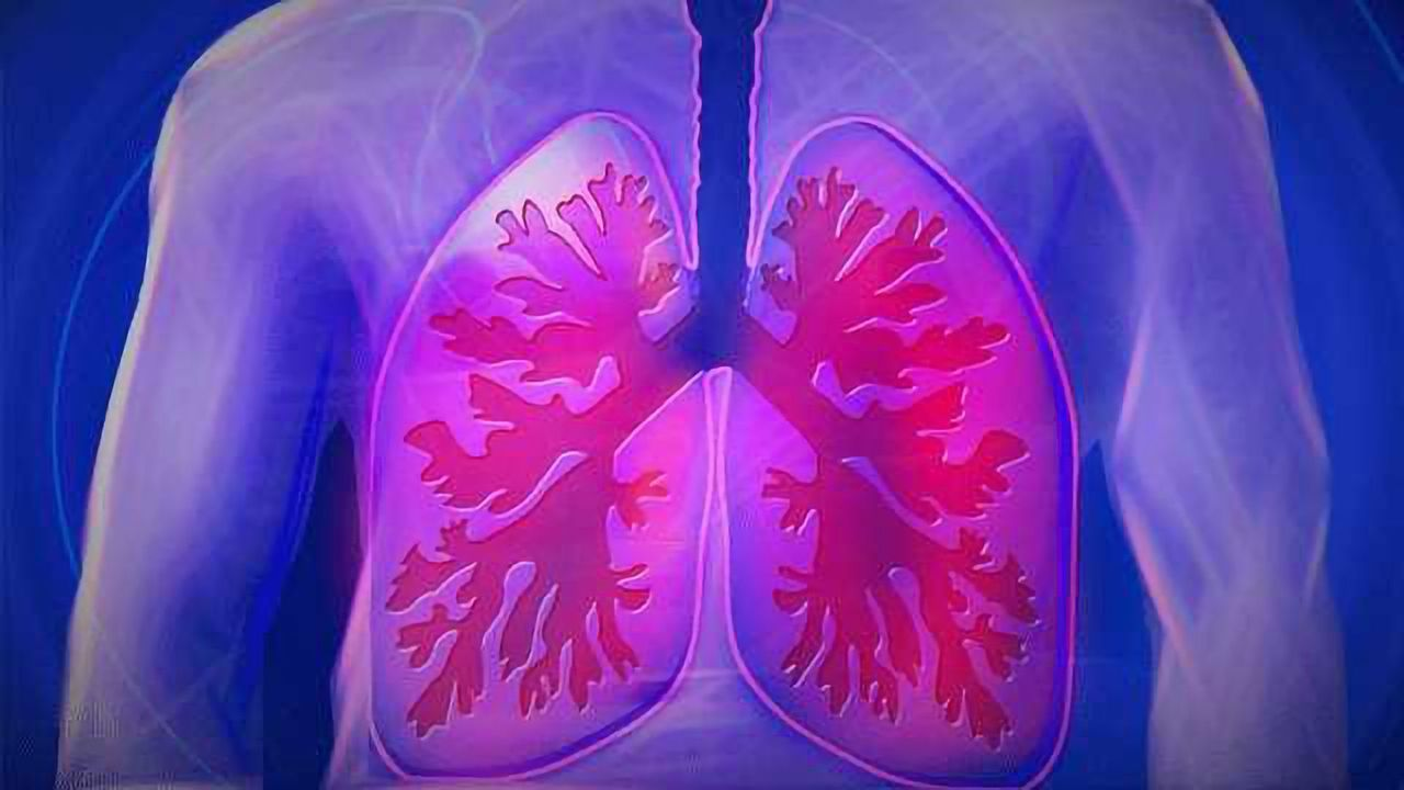 Nanopore Technology Detects Small Lung Cell Cancer MicroRNA