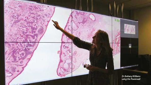 First Fully Digital Pathology Lab in UK Improves Cancer Diagnosis