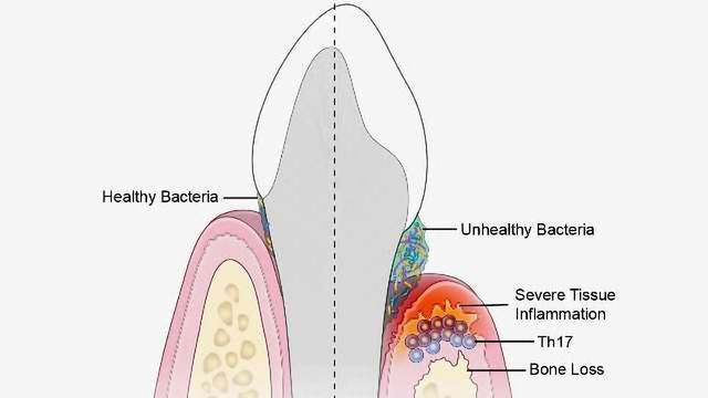 Immune Culprits Linked to Inflammation and Bone Loss in Gum Disease