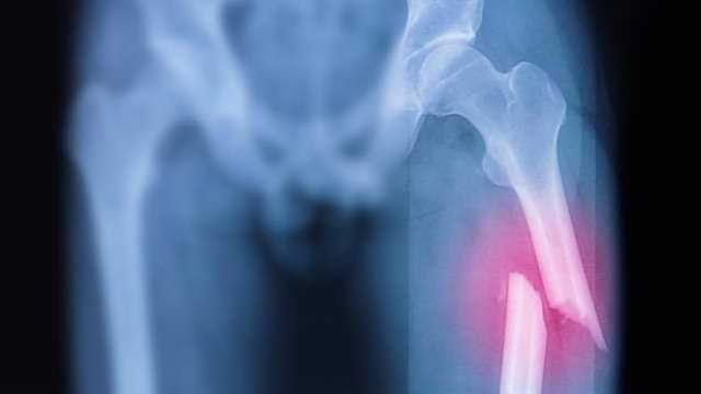 A Way to Fix Bone Fractures Faster?