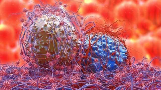Drug Discovery Could Halt Brain Cancer Spread