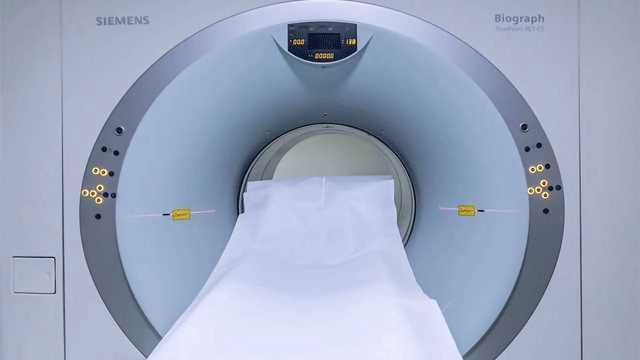 MRI Scans Shows Promise in Predicting Dementia