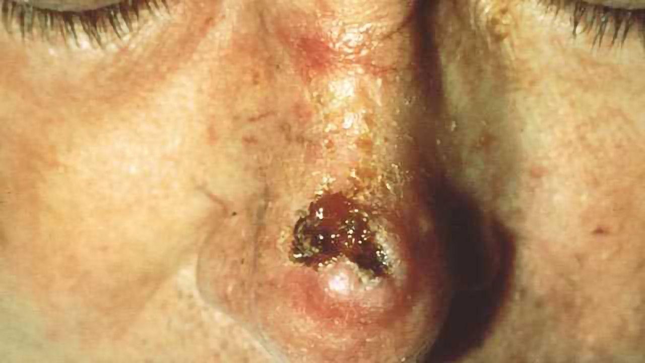 New Drug Target for Skin Cancer?