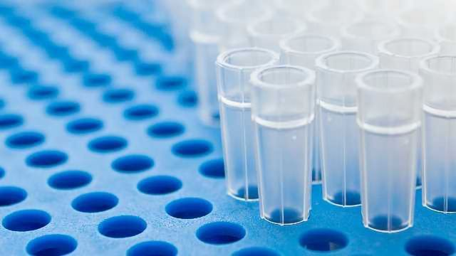 Top Tips for RNA Extraction From Mouse Brain Tissue