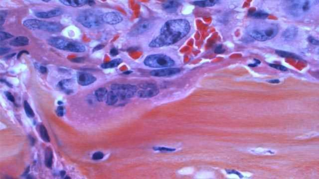 Drug Improves Outcomes & Survival Rates in Patients with Bone Marrow Cancer