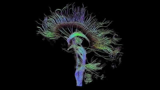 A Clearer Picture of Brain Scan Data