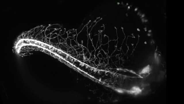 Stunning Sensory Neuron Development in Zebrafish
