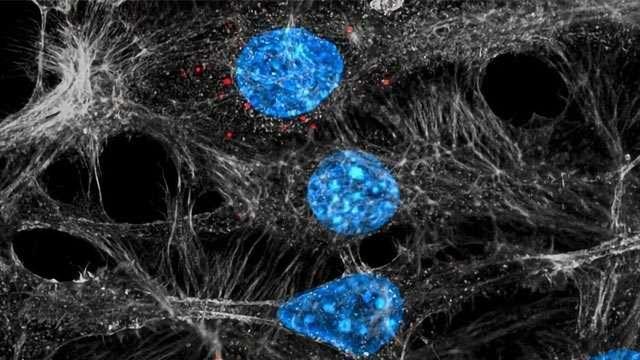 Tumors Backfire on Chemotherapy