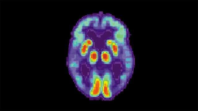 Deep-learning Algorithm Detects Alzheimer's 6 Years Before Clinical Diagnosis