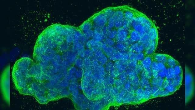 Errant Editing Enzyme Promotes Tumor Suppressor Loss and Leukemia Propagation