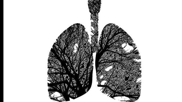Costs and Complications of Lung Cancer Diagnostic Tests Underestimated