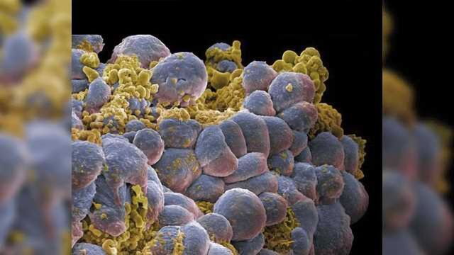 Role of Iron in Initiating Programmed Cell Death
