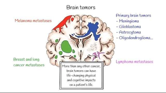 How Does Solid Stress from Brain Tumors Damage Healthy Tissue?