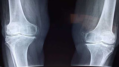 Genetics Reveal New Treatment Options for Osteoarthritis