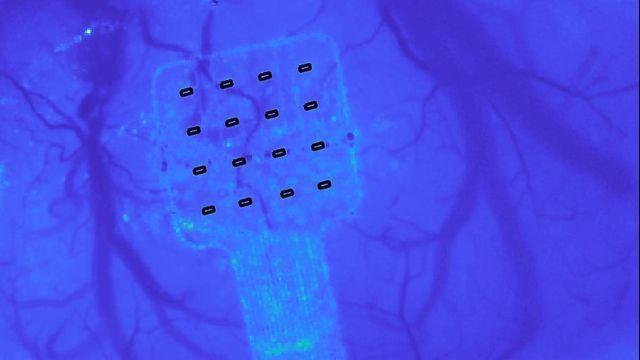 Graphene Sensor Can Hear Your Brain Whisper