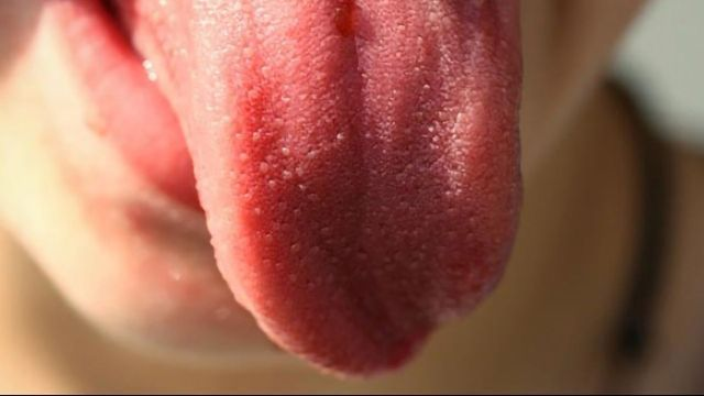 Analyzing Bacteria on the Tongue to Identify Patients with Pancreatic Cancer