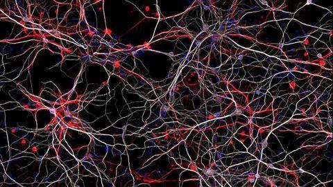 Novel Autism Mouse Model Based on an Epigenetic Gene Developed